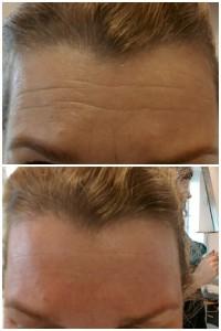 Voor en na bindweefselmassage